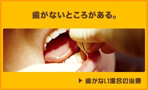 歯がないところがある。 歯がない場合の治療